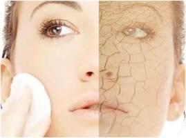dryskin-acne11